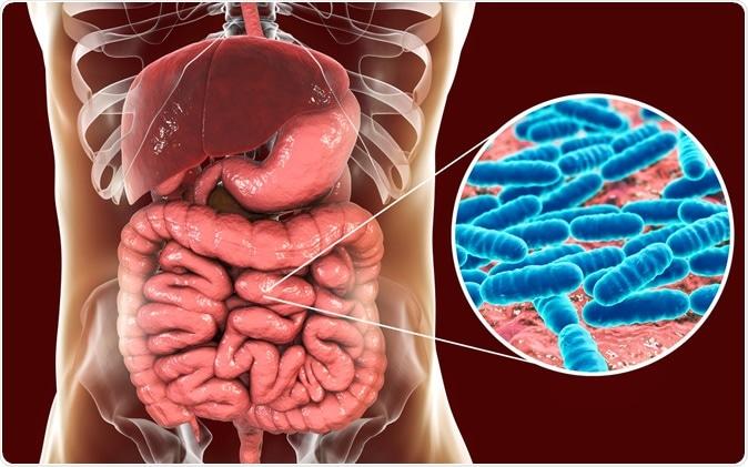 diabetes de bacterias del ácido láctico