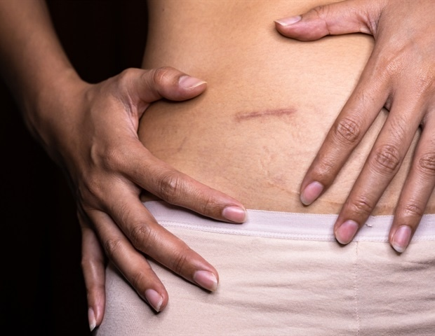 Patient satisfaction and quality of life are similar for all appendicitis treatments