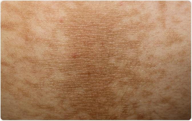 Acanthosis Nigricans Skin