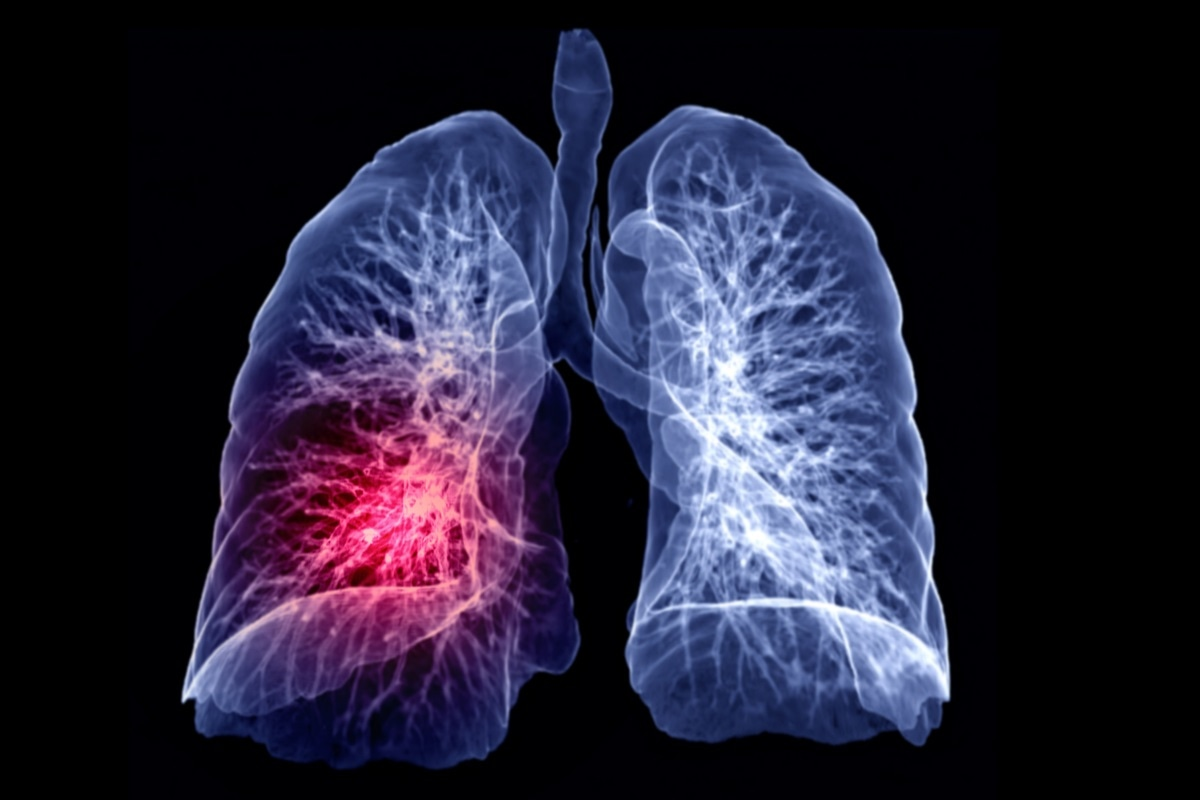 sarcoma cancer in lungs