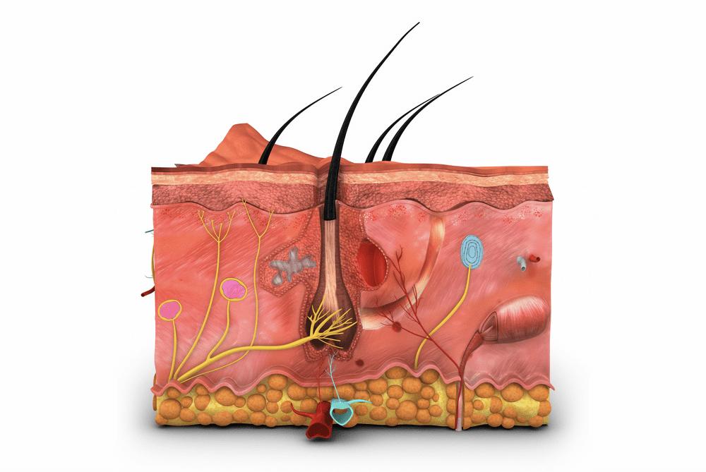 Papillomatosis and skin. Papillomatosis causes