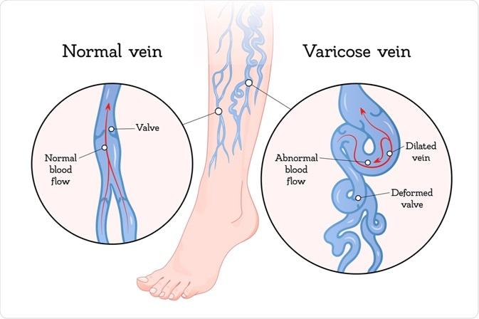 varicoză care este interzisă îndepărtați picioarele de umflare în varicoză