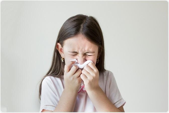 Allergies and Genetics