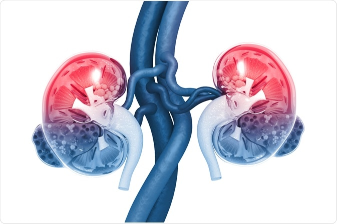 Acute Kidney Injury (AKI)