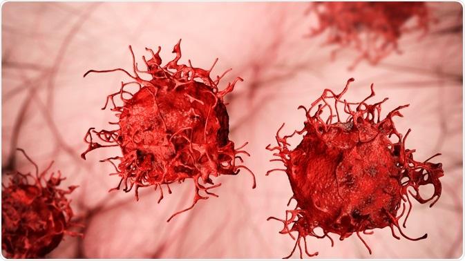 malignant neoplasm cancer)