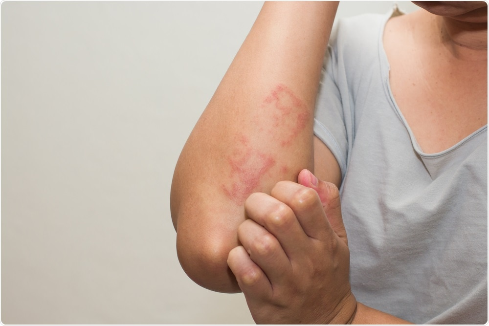 How can COVID-19 affect the skin?