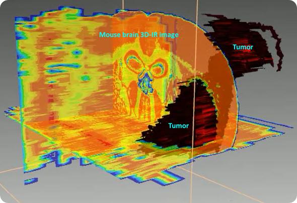 3D mouse brain tumour