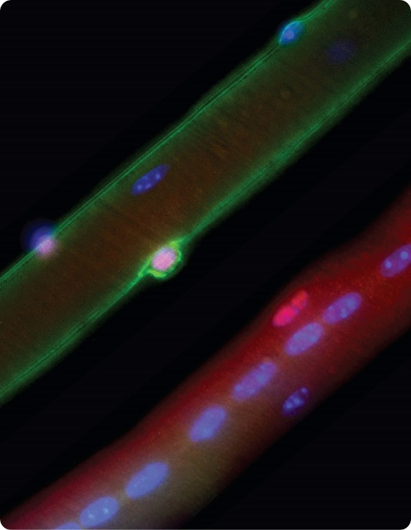 A normal mouse muscle fibre (top left) is contrasted with a muscle fibre from a mouse model of Duchenne muscular dystrophy (bottom right). In normal mice, stem cells (pink) express dystrophin (green)