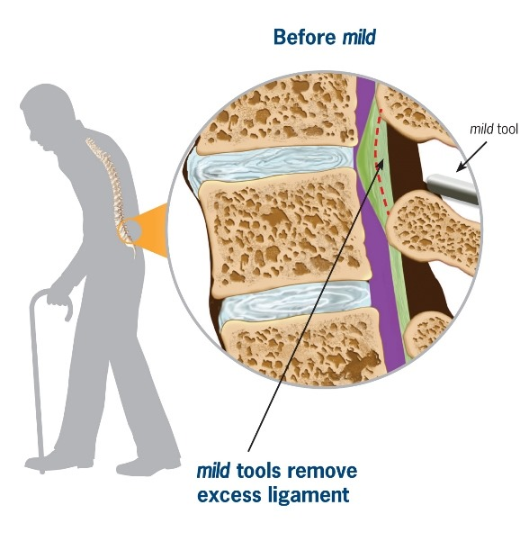 spinal steroid injections aftercare