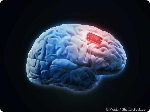 Brain implant concept