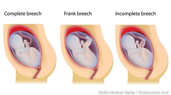 Breech birth positions