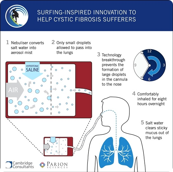 Viral Infections May Affect Cystic Fibrosis Patients: Innovative Nebulizer To Treat Cystic Fibrosis Developed By