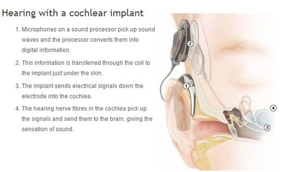 an overview of cochlear implants A cochlear implant is a small, complex electronic device that can help to provide a sense of sound to a person who is profoundly deaf or severely hard-of-hearing.