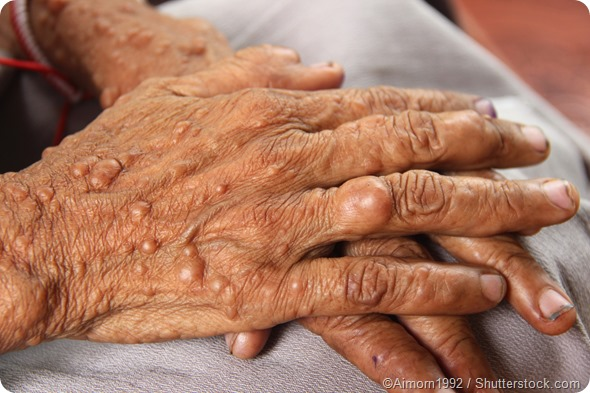 Female hands neurofibromatosis