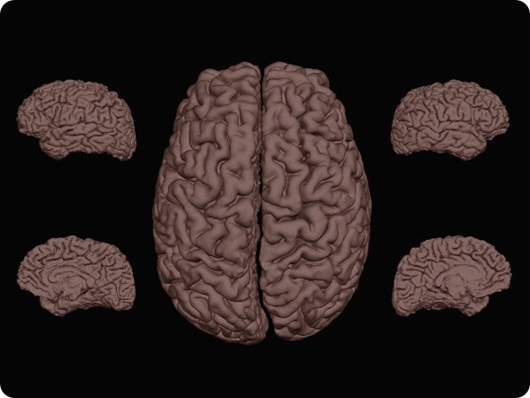 Fibro brain 1 - resized