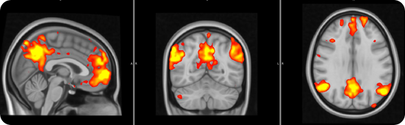 Fibro brain 2