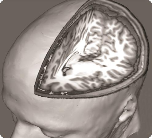 Fibro brain 3