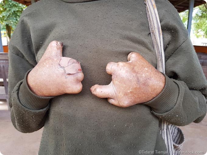 Fingers lost leprosy sufferer