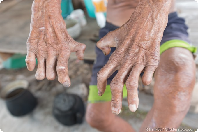 Hand injuries from leprosy
