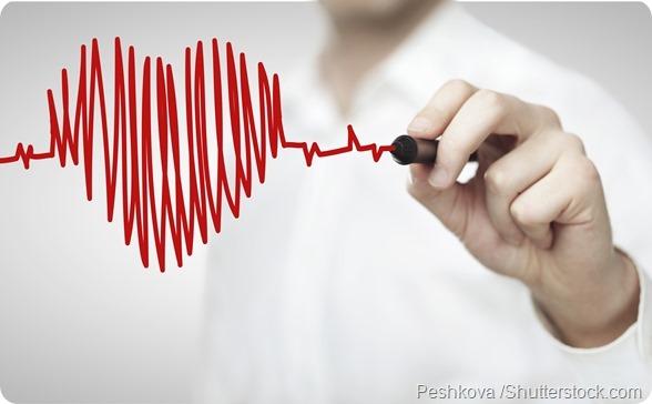 Heart rhythm - 590