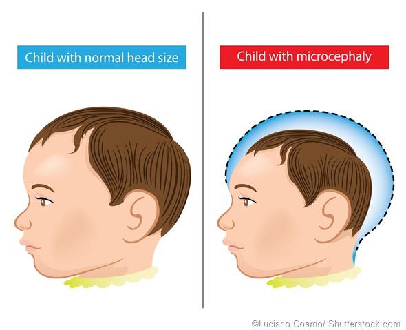 baby Microcephaly disease illustration
