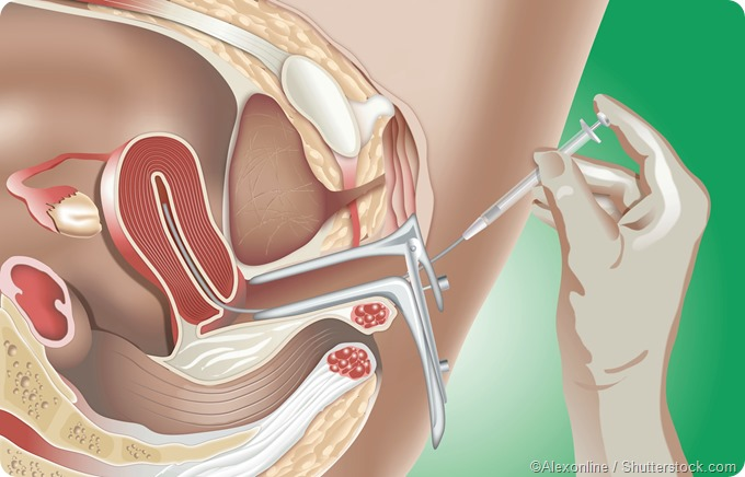 Intrauterine Insemination (IUI) illustration