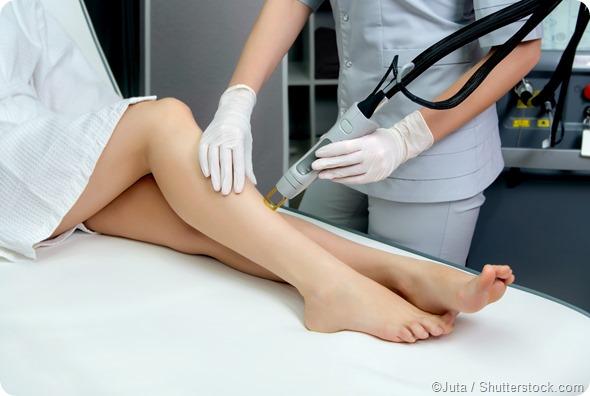 Leg laser hair removal treatment