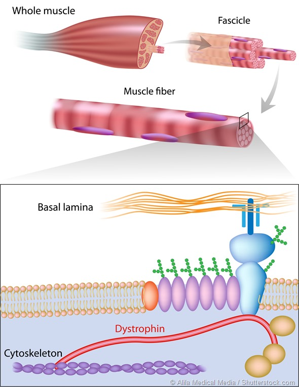 a genetic disease muscular dystrophy Genetic testing for duchenne and becker muscular dystrophy effective carrier screening for genetic diseases genetic testing for duchenne and becker.