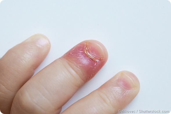 What Are Nail Fold Infections Paronychia