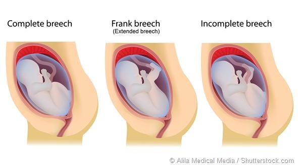 Pregnancy breech