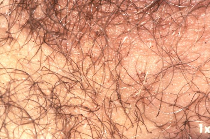Pubic Lice: Get Facts about Sexually Transmitted Parasites