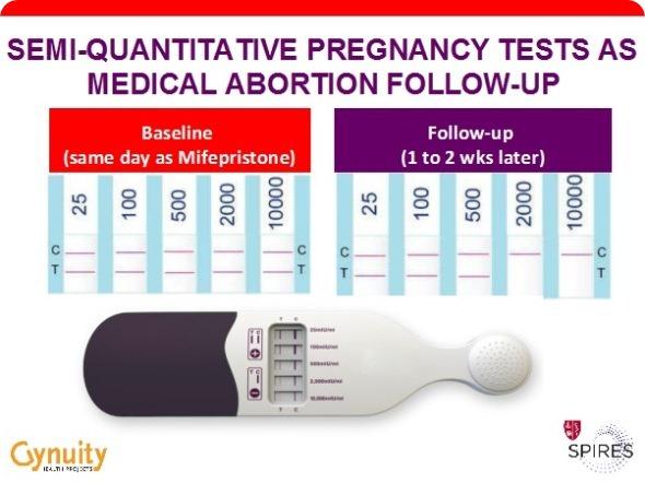 Prueba de Embarazo SQ vuelta a clasificar según el tamaño