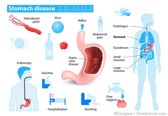 Stomach disease infrographic