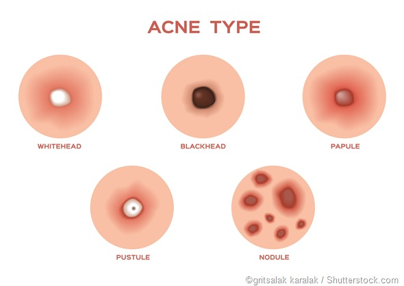 Types of acne illustration