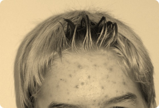 Pubescent boy with acne on his forehead.