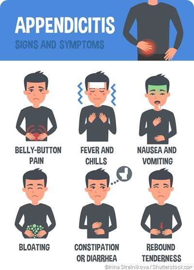 appendicitis symptoms infographic