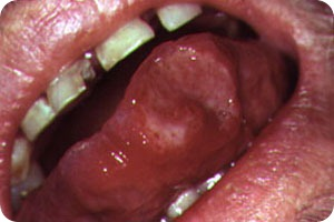 What Are Canker Sores
