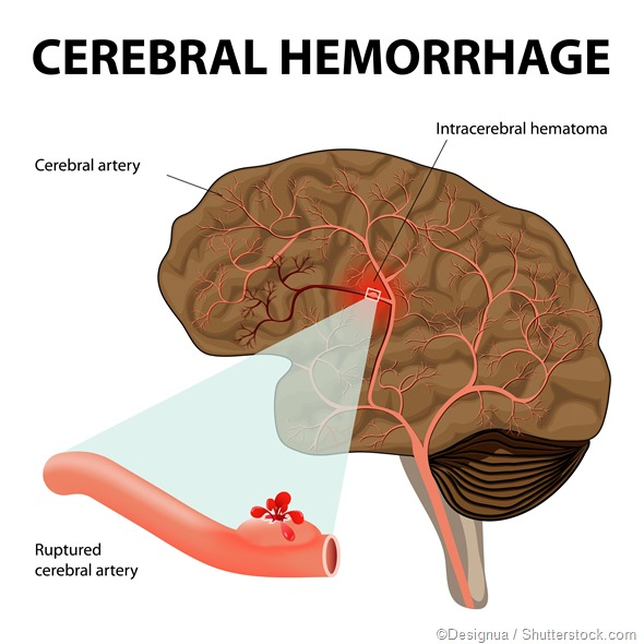 cerebral hemorrhage illustration