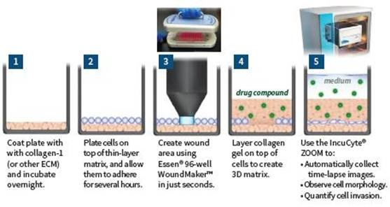 Steps involved to quantify cell invasion