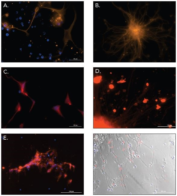 2D and 3D neural stem cell differentiation