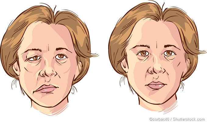 facial palsy illustration