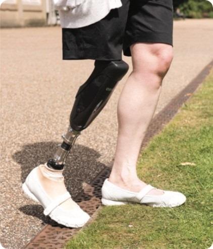 новая конструкция протеза коленного сустава
