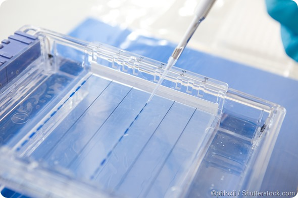 polyacrylamide gel electrophoresis Intl res j appl basic sci vol, 7 (4), 213-221, 2013 215 polyacrylamide gel electrophoresis consist ofpolyacrylamide gel, which is made up of chains of acrylamide.