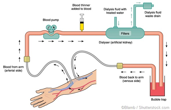 Benefits and Disadvantages of Dialysis