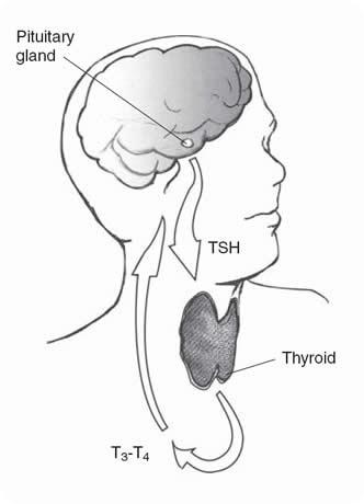 Hypothyreose
