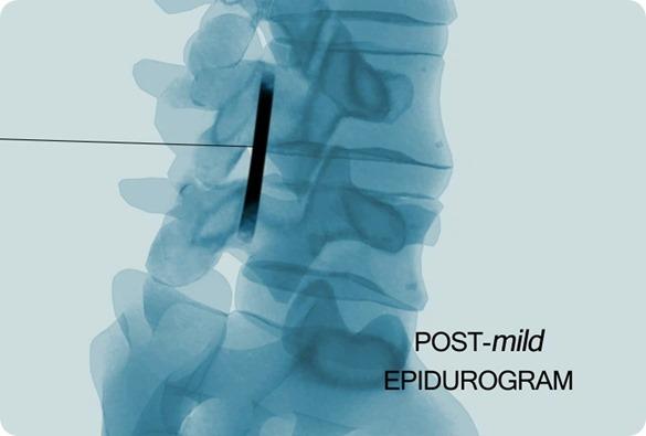 mild Post Procedure Imaging