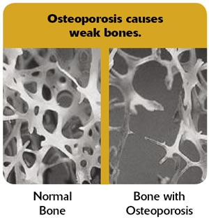 osteoperosis essay Thesis statement : factors contributing to osteoporosis, the symptoms and consequences of this disease and its prevention and treatments so that .