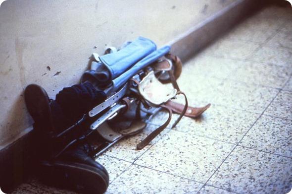 talas do pé do membro do paciente da poliomielite mais baixas que encontram-se em um assoalho telhado