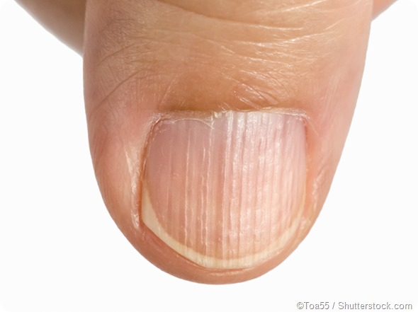 There Is A Problem During The Growth Phrase Of Nail Horizontal Linearks Which Are Called Beau S Lines May Be Warning Health Issue