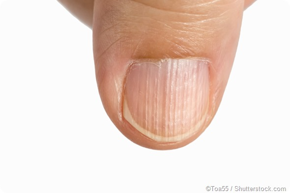 However Deeper Ridges Discolored Nails And Jagged Edges Of Brittle May Be Symptomatic Other Underlying Conditions Longitudinal Ridging